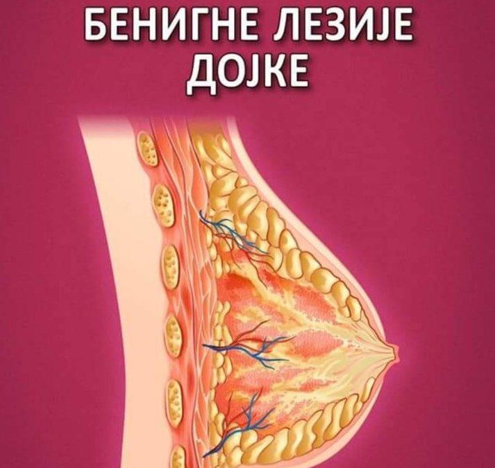 """Doc. dr Nataša Prvulović Bunović, konsultant ordinacije Anđelić – koautorka monografije """"Benigne lezije dojke""""."""